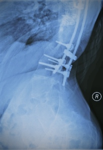 Spinal Fusion