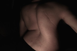 Scars Scoliosis